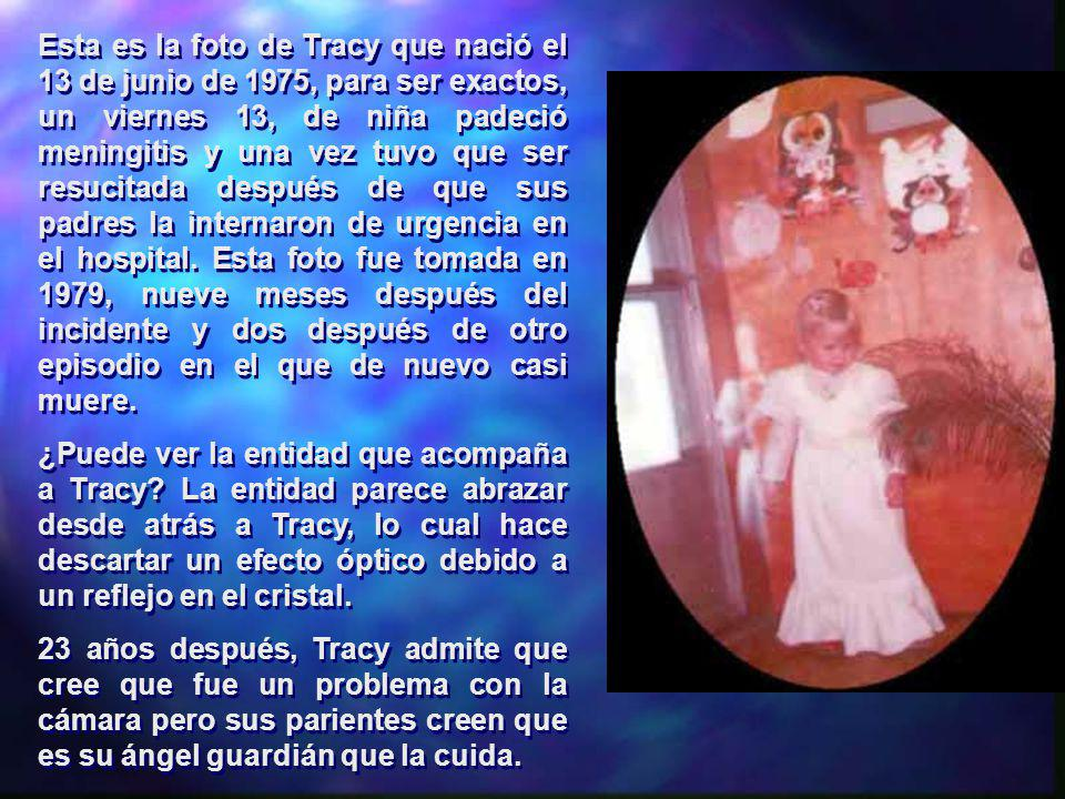 Esta es la foto de Tracy que nació el 13 de junio de 1975, para ser exactos, un viernes 13, de niña padeció meningitis y una vez tuvo que ser resucitada después de que sus padres la internaron de urgencia en el hospital. Esta foto fue tomada en 1979, nueve meses después del incidente y dos después de otro episodio en el que de nuevo casi muere.