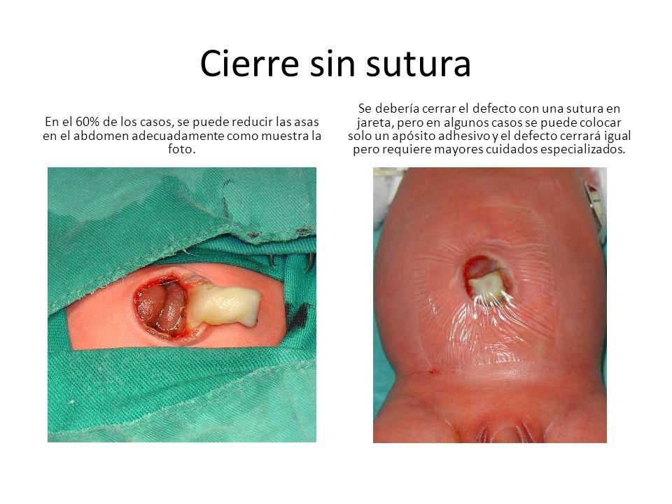 Cierre sin sutura