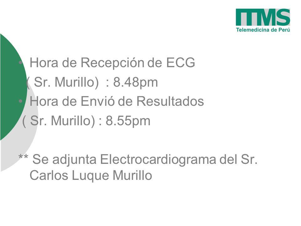 Hora de Recepción de ECG