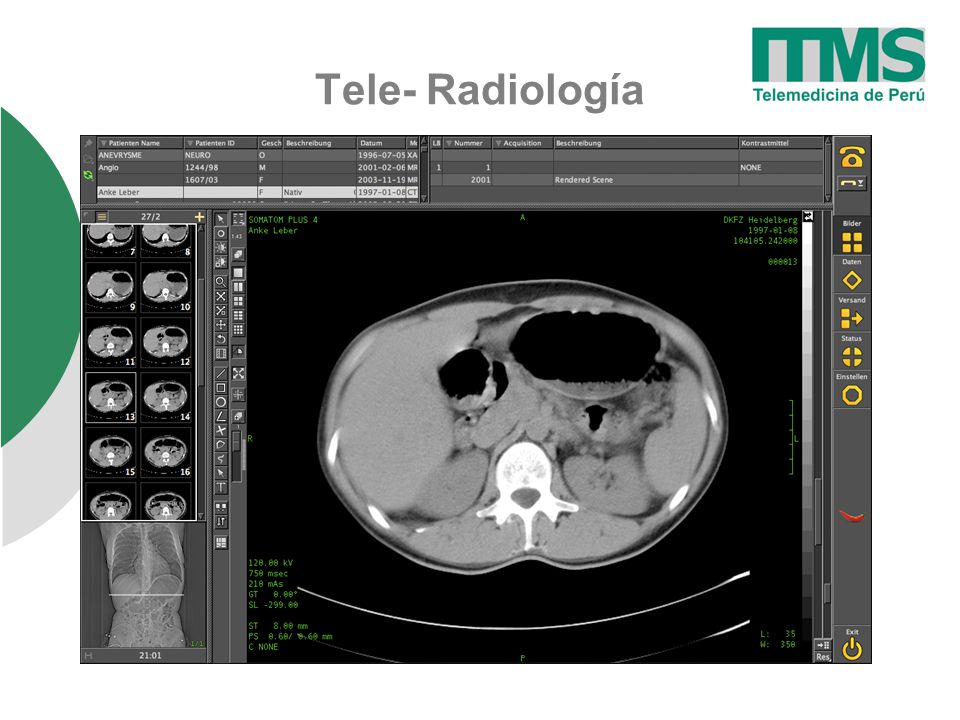 Tele- Radiología User Interface