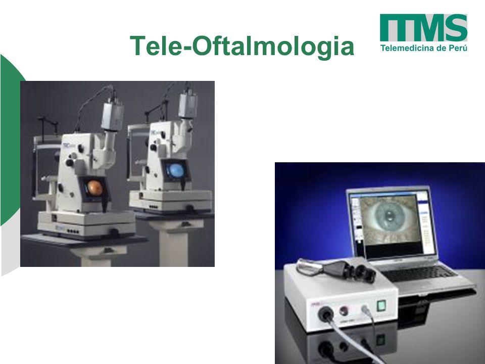 Tele-Oftalmologia