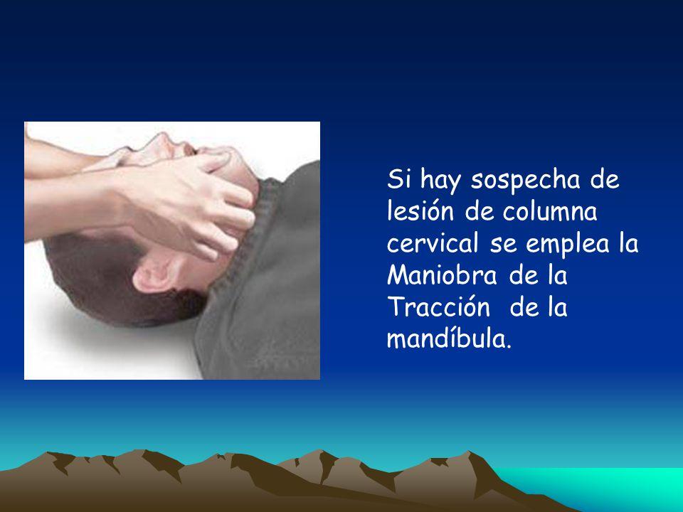 Si hay sospecha de lesión de columna cervical se emplea la Maniobra de la Tracción de la mandíbula.