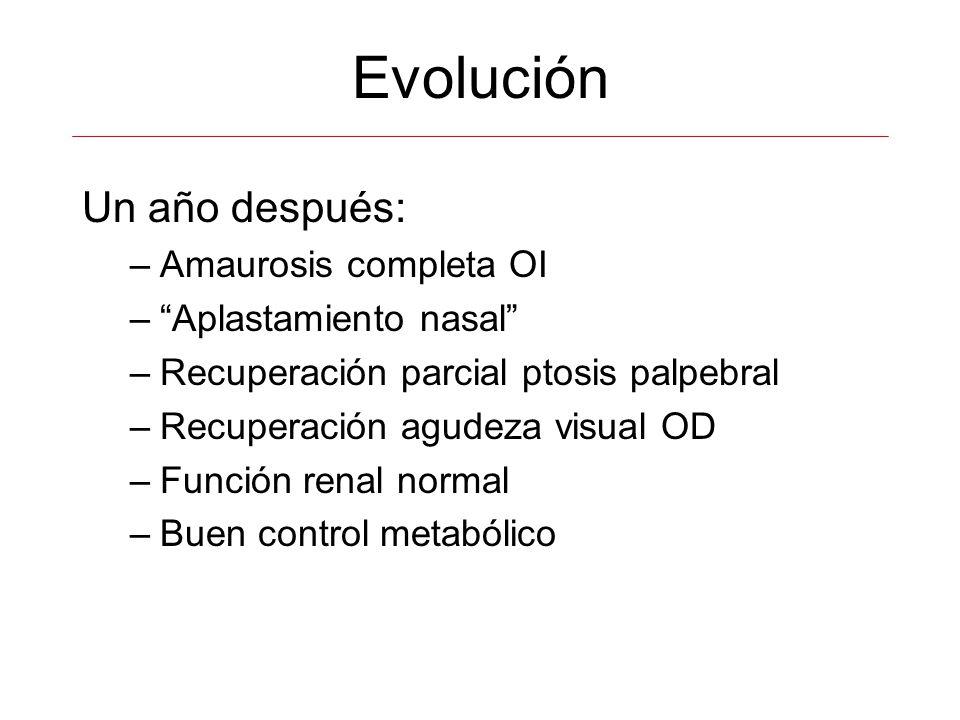 Evolución Un año después: Amaurosis completa OI Aplastamiento nasal