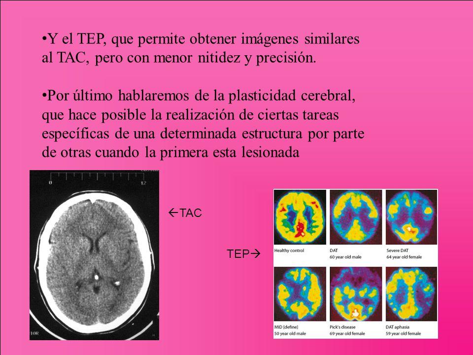 Y el TEP, que permite obtener imágenes similares al TAC, pero con menor nitidez y precisión.
