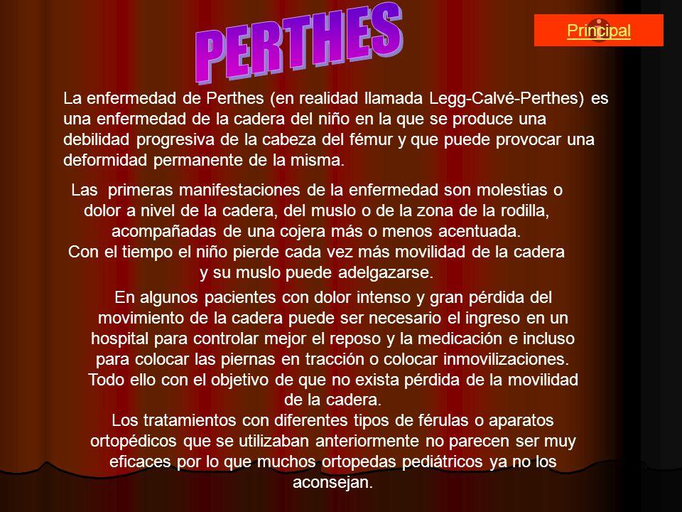 PERTHES Principal.