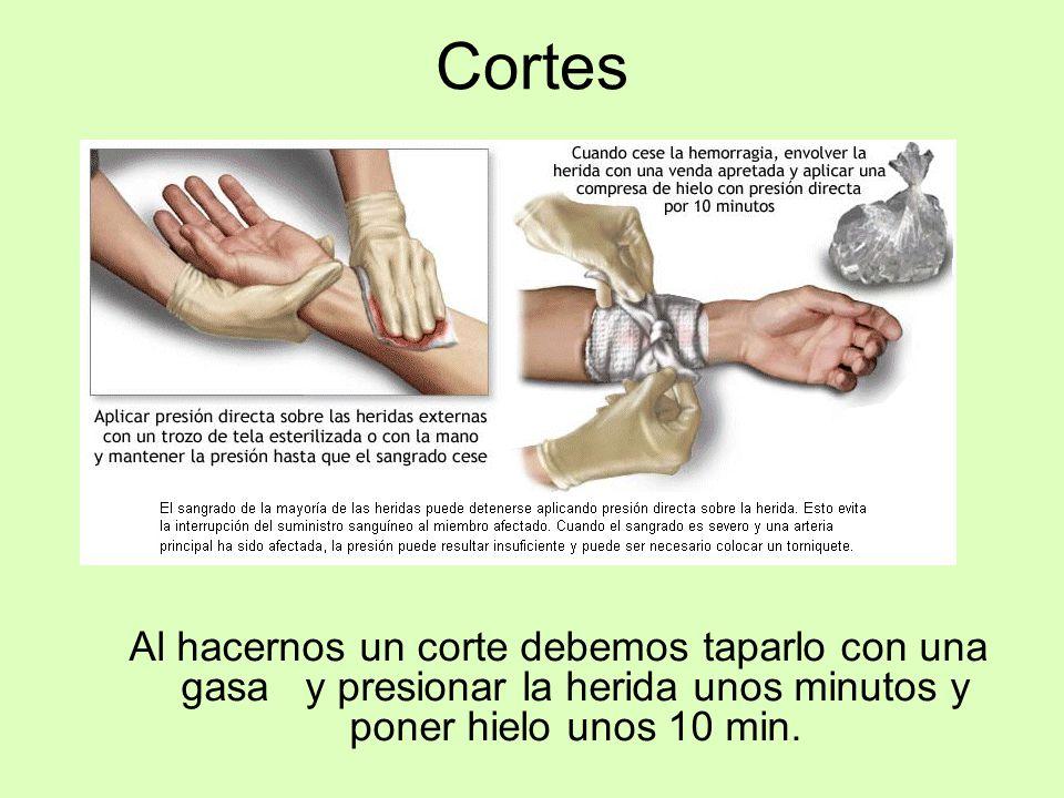 Cortes Al hacernos un corte debemos taparlo con una gasa y presionar la herida unos minutos y poner hielo unos 10 min.