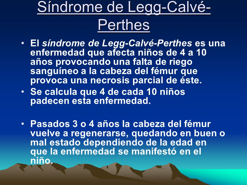 Síndrome de Legg-Calvé-Perthes