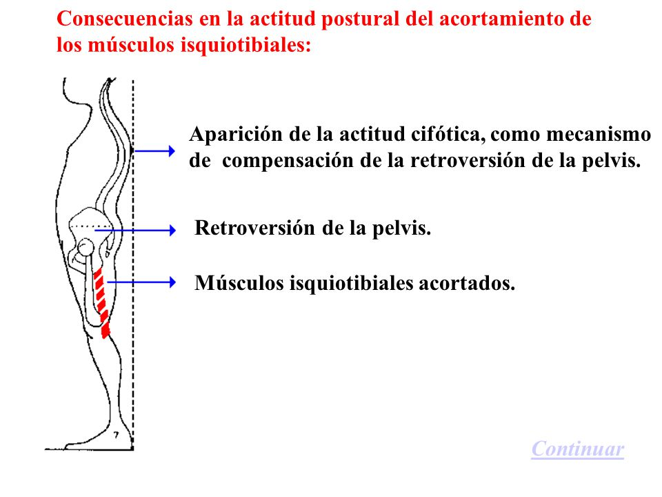 Consecuencias en la actitud postural del acortamiento de los músculos isquiotibiales: