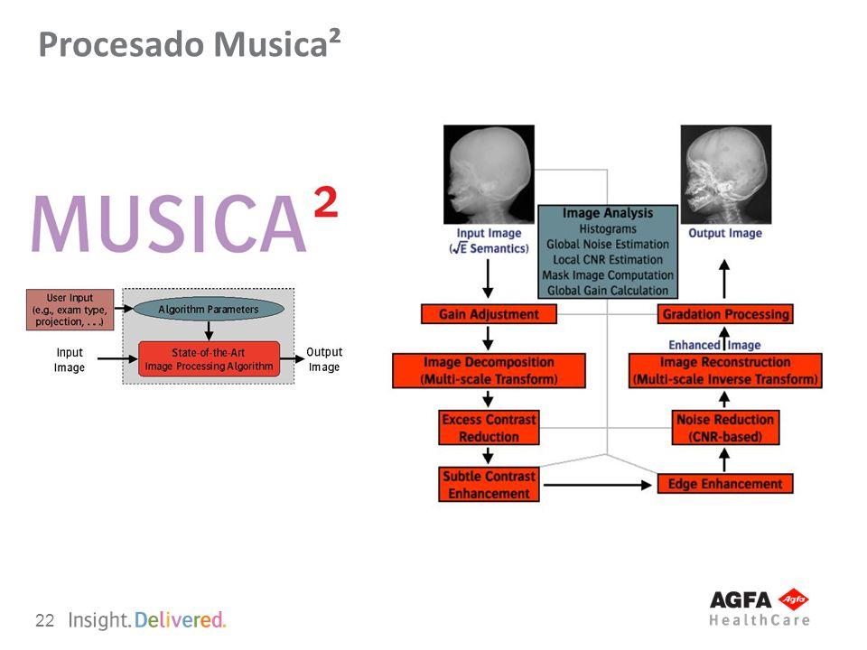 Procesado Musica²