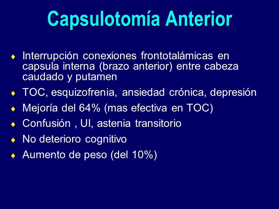 Capsulotomía Anterior