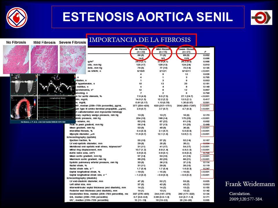 ESTENOSIS AORTICA SENIL