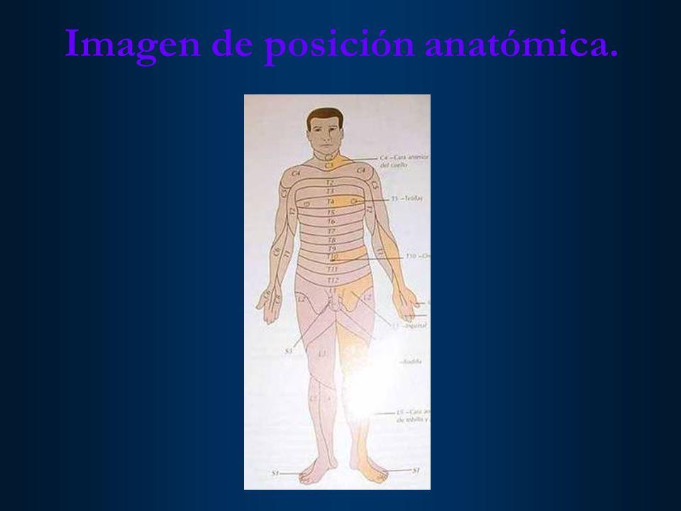 Imagen de posición anatómica.
