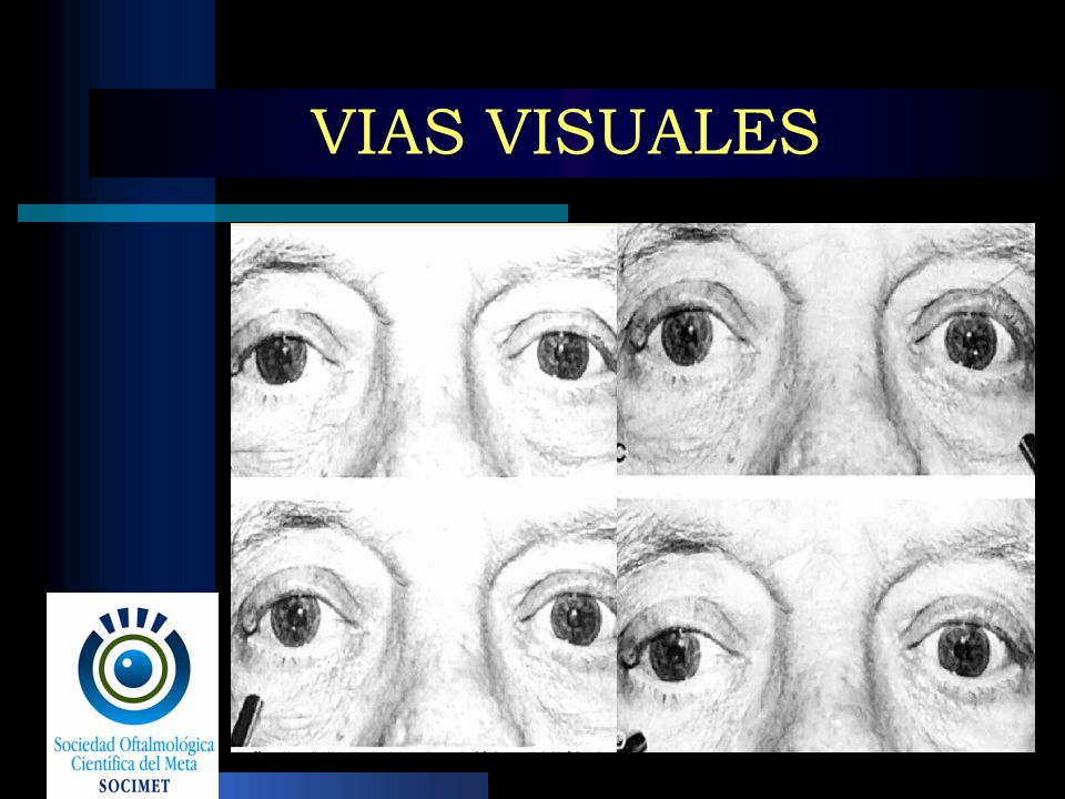 VIAS VISUALES