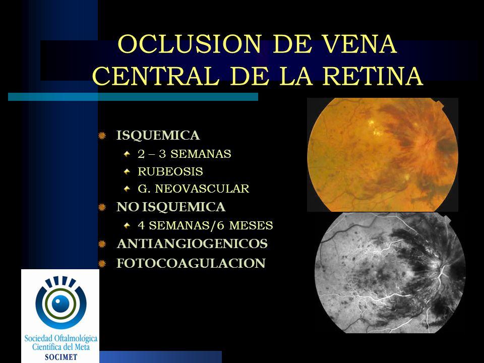 OCLUSION DE VENA CENTRAL DE LA RETINA