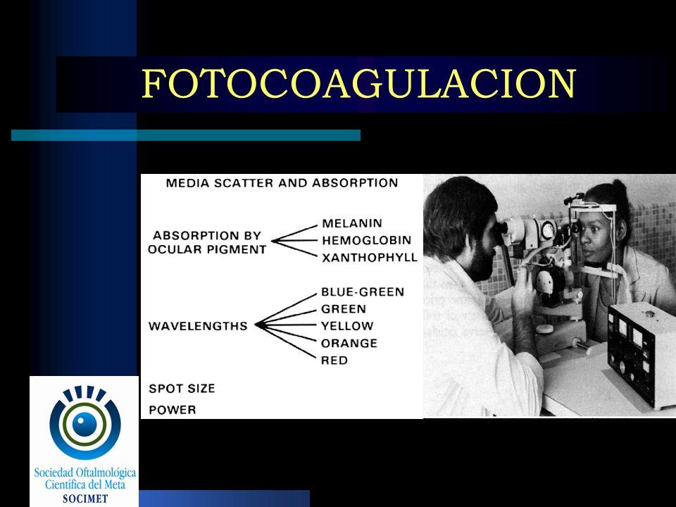 FOTOCOAGULACION