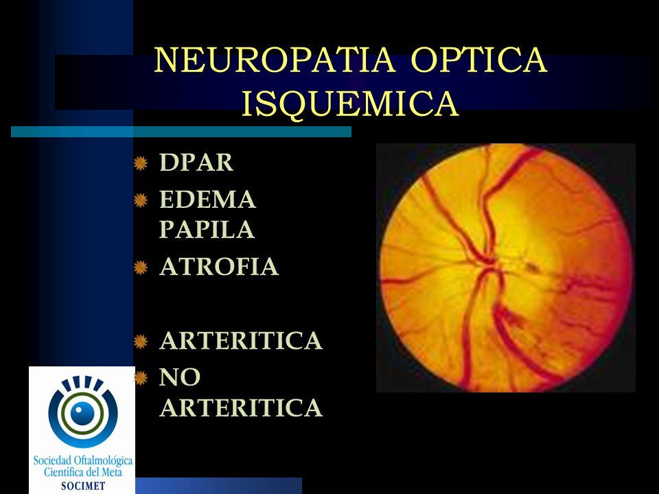 NEUROPATIA OPTICA ISQUEMICA