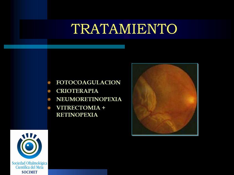 TRATAMIENTO FOTOCOAGULACION CRIOTERAPIA NEUMORETINOPEXIA