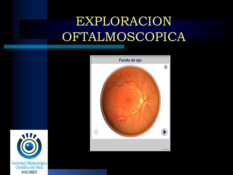 EXPLORACION OFTALMOSCOPICA