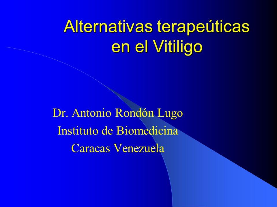 Alternativas terapeúticas en el Vitiligo