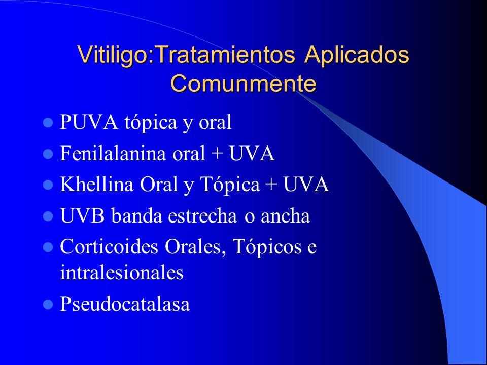 Vitiligo:Tratamientos Aplicados Comunmente
