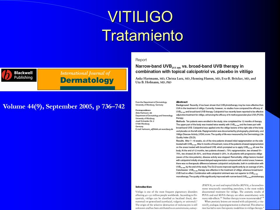 VITILIGO Tratamiento Volume 44(9), September 2005, p 736–742