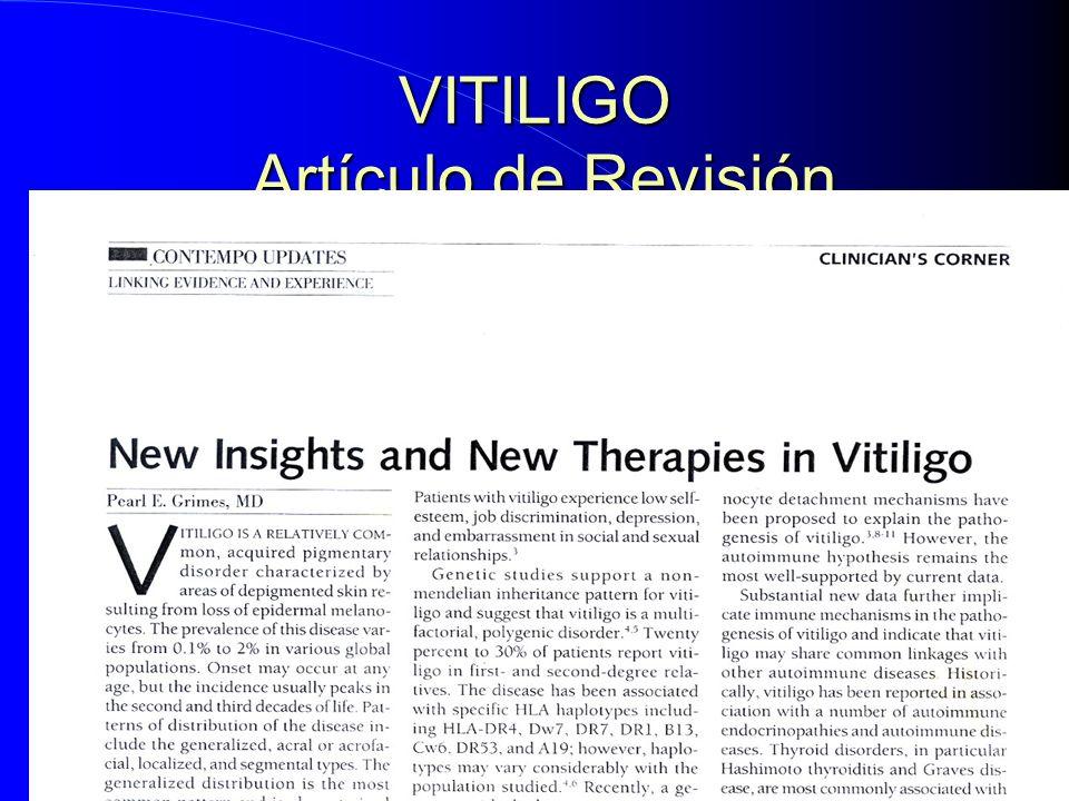 VITILIGO Artículo de Revisión