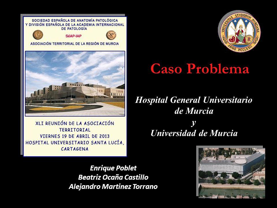 Caso Problema Hospital General Universitario de Murcia y