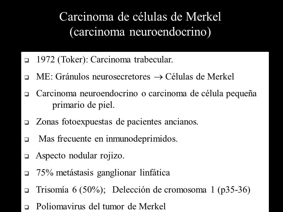Carcinoma de células de Merkel (carcinoma neuroendocrino)