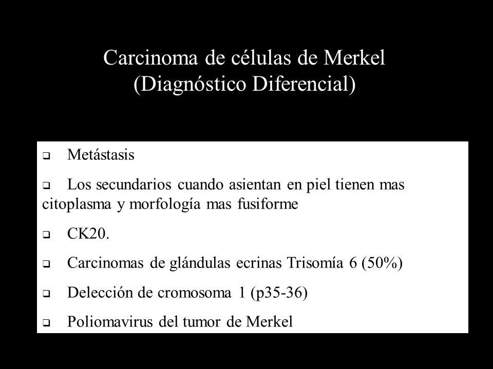 Carcinoma de células de Merkel (Diagnóstico Diferencial)