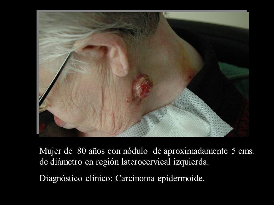 Mujer de 80 años con nódulo de aproximadamente 5 cms