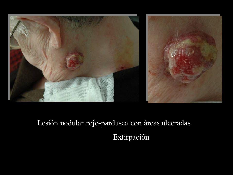 Lesión nodular rojo-pardusca con áreas ulceradas.