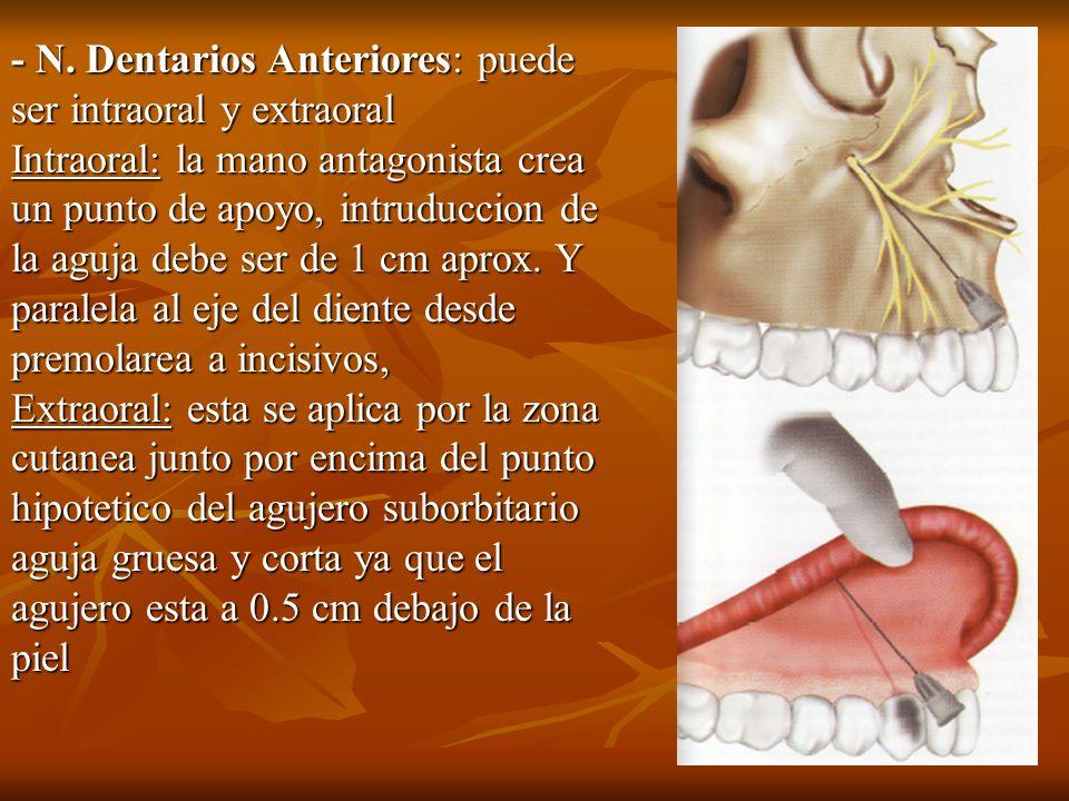 - N. Dentarios Anteriores: puede ser intraoral y extraoral