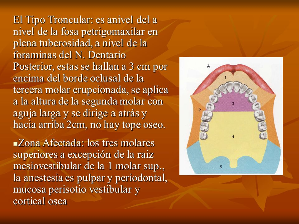 El Tipo Troncular: es anivel del a nivel de la fosa petrigomaxilar en plena tuberosidad, a nivel de la foraminas del N. Dentario Posterior, estas se hallan a 3 cm por encima del borde oclusal de la tercera molar erupcionada, se aplica a la altura de la segunda molar con aguja larga y se dirige a atrás y hacia arriba 2cm, no hay tope oseo.