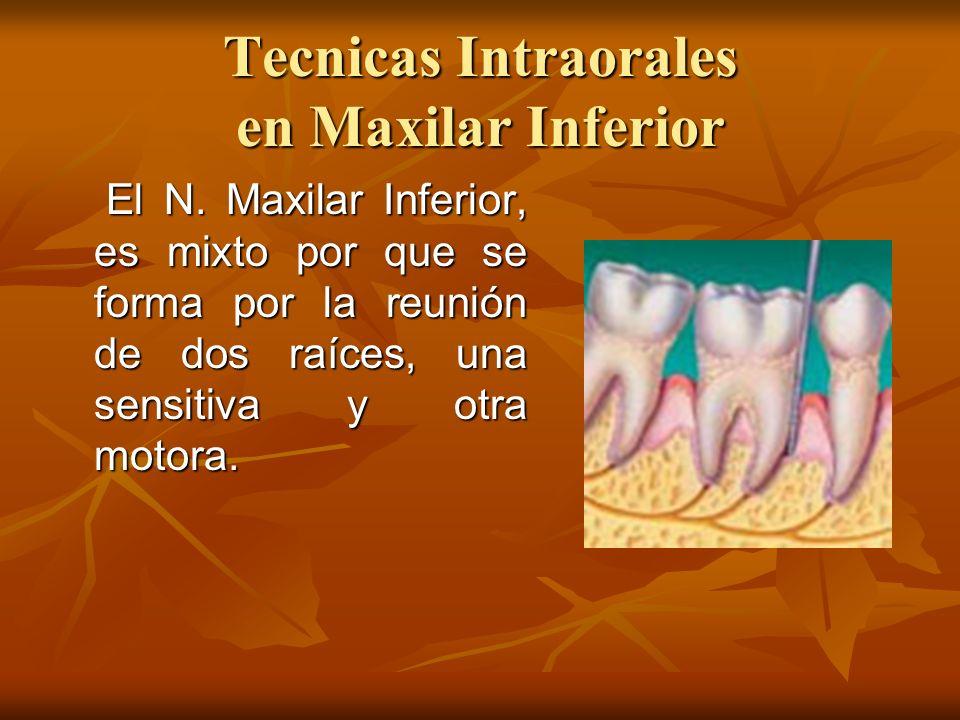 Tecnicas Intraorales en Maxilar Inferior