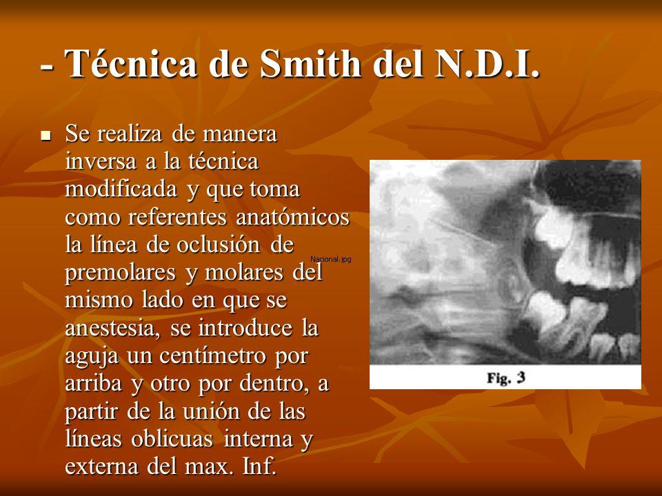 - Técnica de Smith del N.D.I.