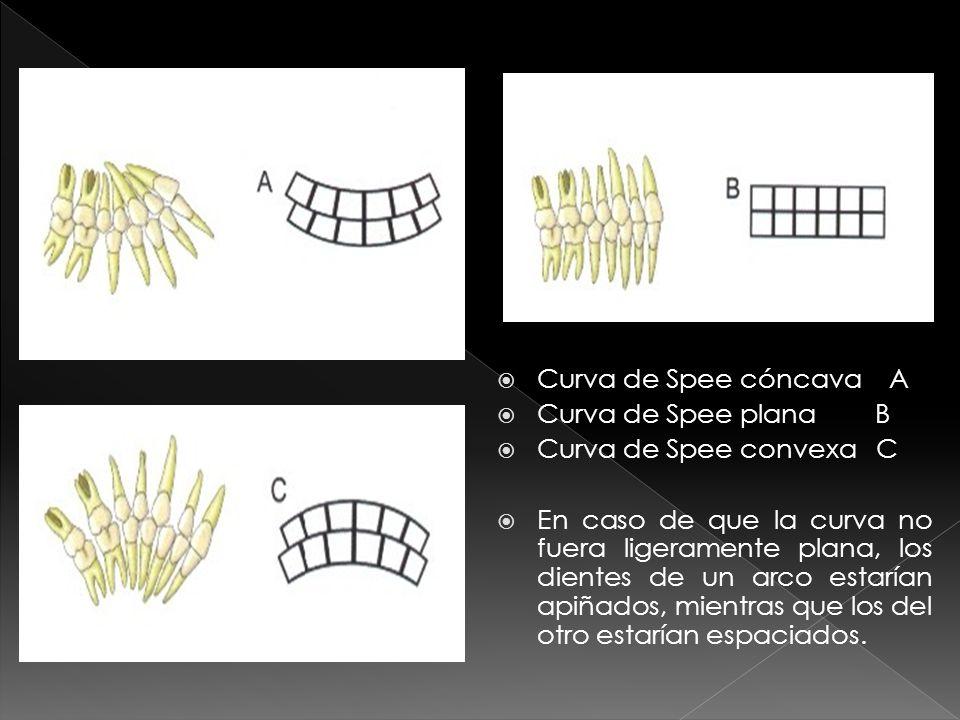 Curva de Spee cóncava A Curva de Spee plana B. Curva de Spee convexa C.