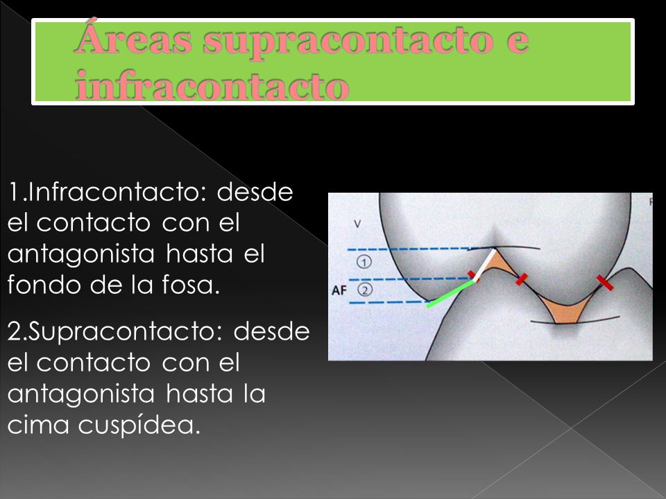 Áreas supracontacto e infracontacto