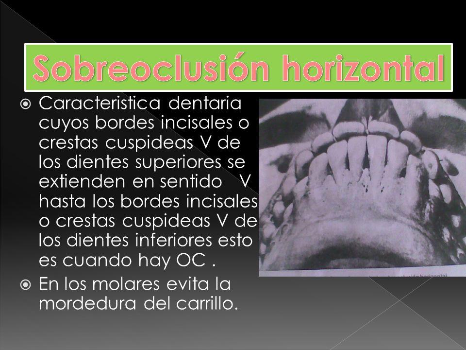 Sobreoclusión horizontal