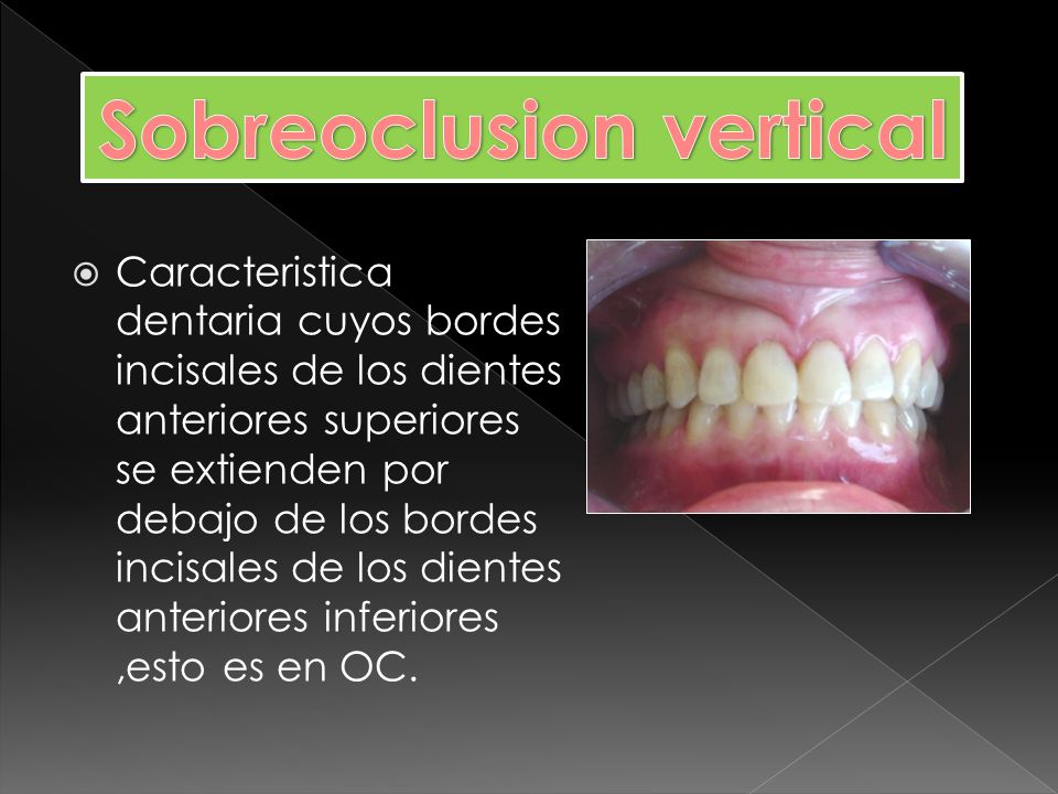 Sobreoclusion vertical