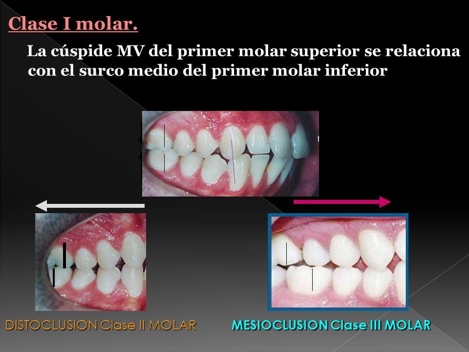 Clase I molar.La cúspide MV del primer molar superior se relaciona con el surco medio del primer molar inferior.