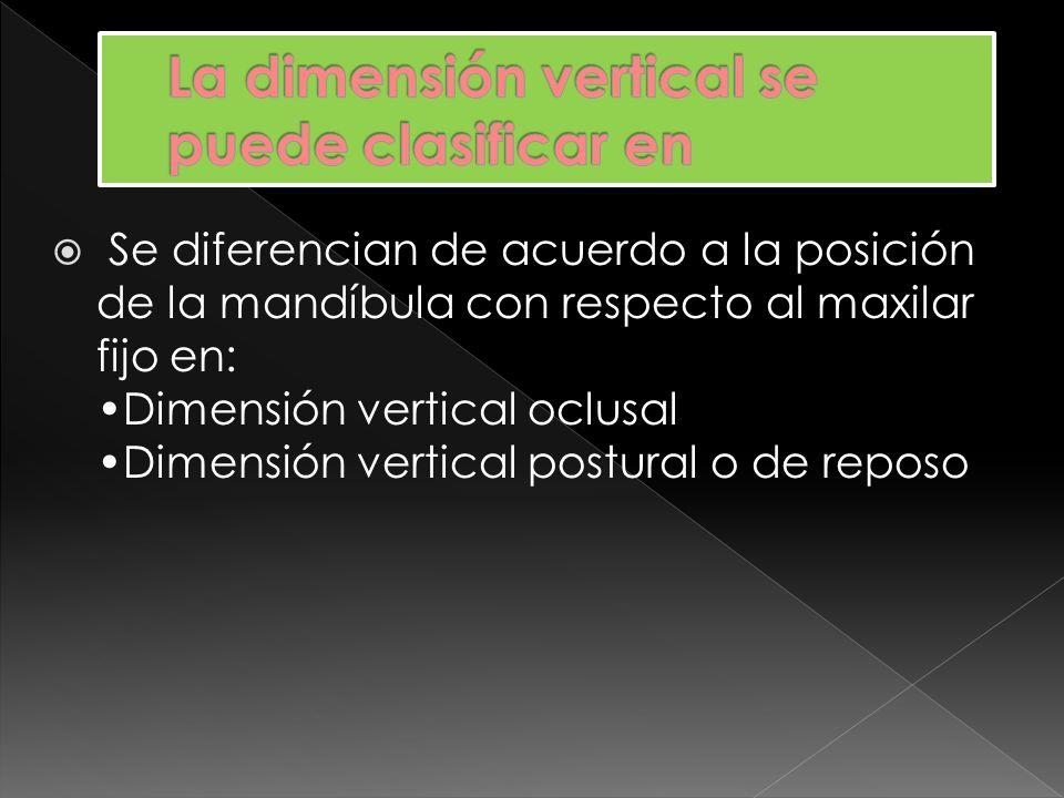 La dimensión vertical se puede clasificar en