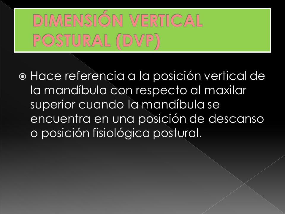 DIMENSIÓN VERTICAL POSTURAL (DVP)