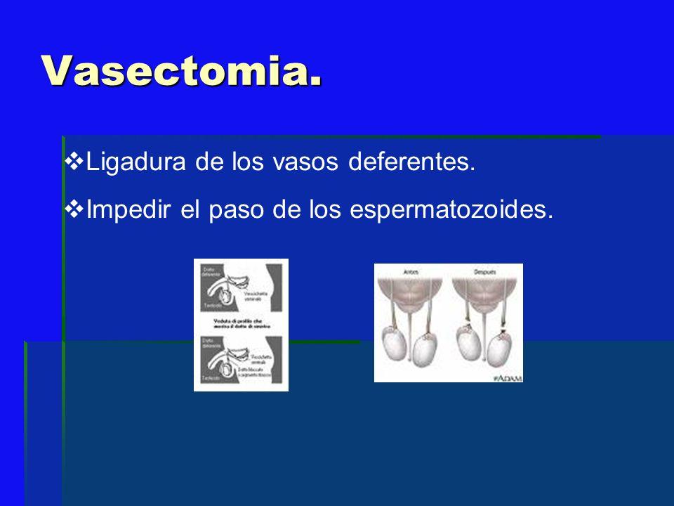 Vasectomia. Ligadura de los vasos deferentes.