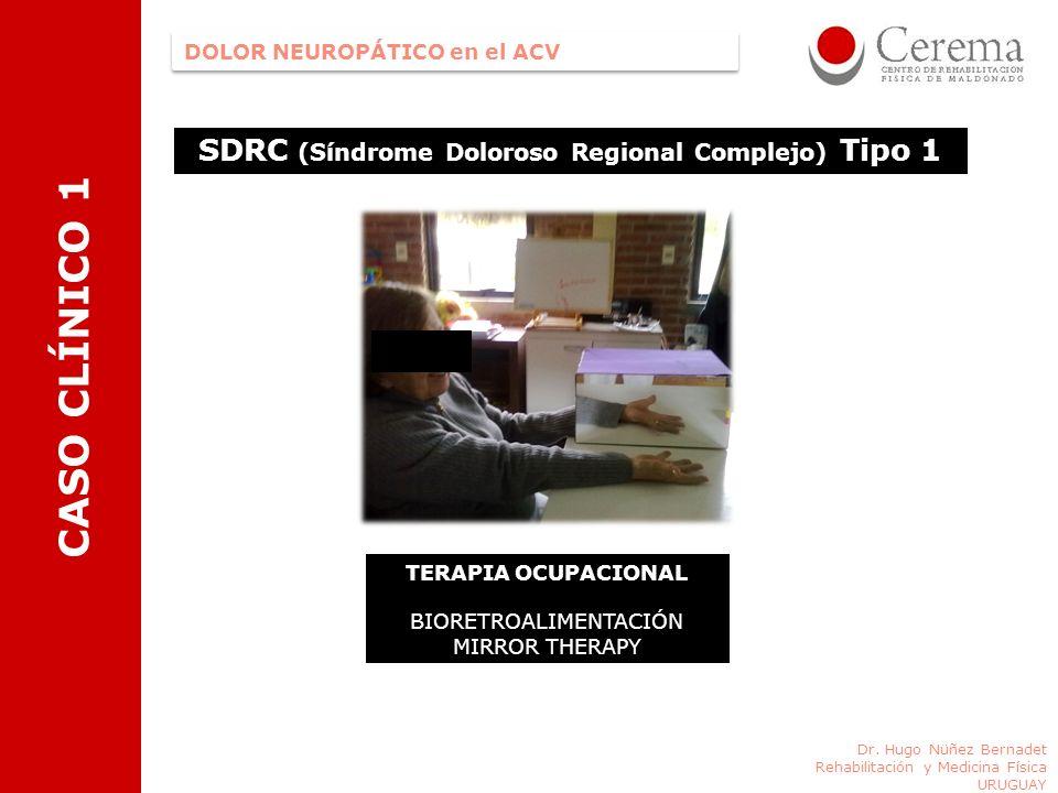 SDRC (Síndrome Doloroso Regional Complejo) Tipo 1