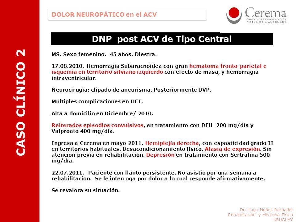 DNP post ACV de Tipo Central
