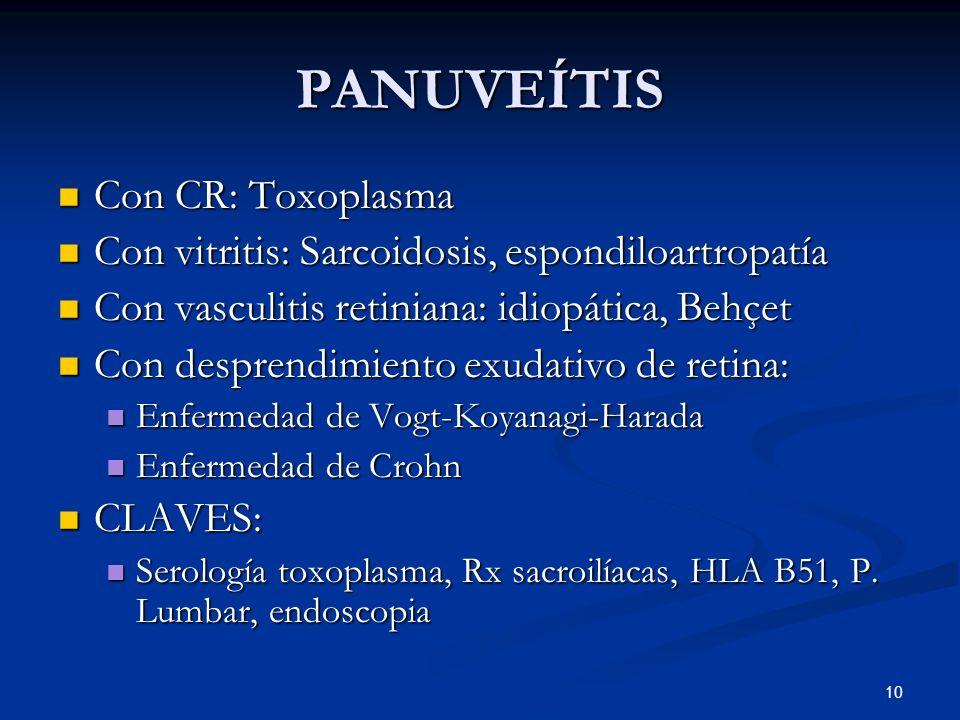 PANUVEÍTIS Con CR: Toxoplasma