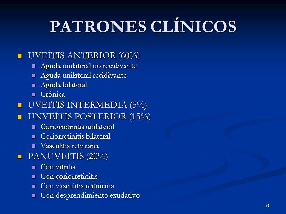 PATRONES CLÍNICOS UVEÍTIS ANTERIOR (60%) UVEÍTIS INTERMEDIA (5%)