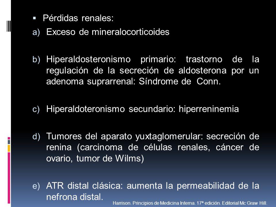 Exceso de mineralocorticoides