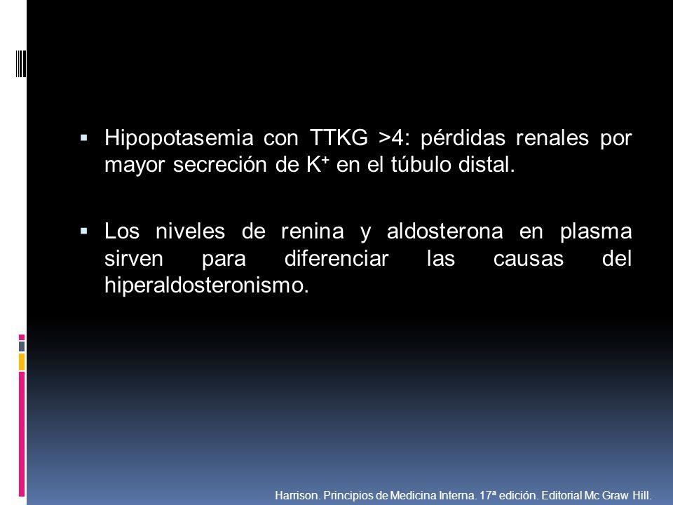 Hipopotasemia con TTKG >4: pérdidas renales por mayor secreción de K+ en el túbulo distal.