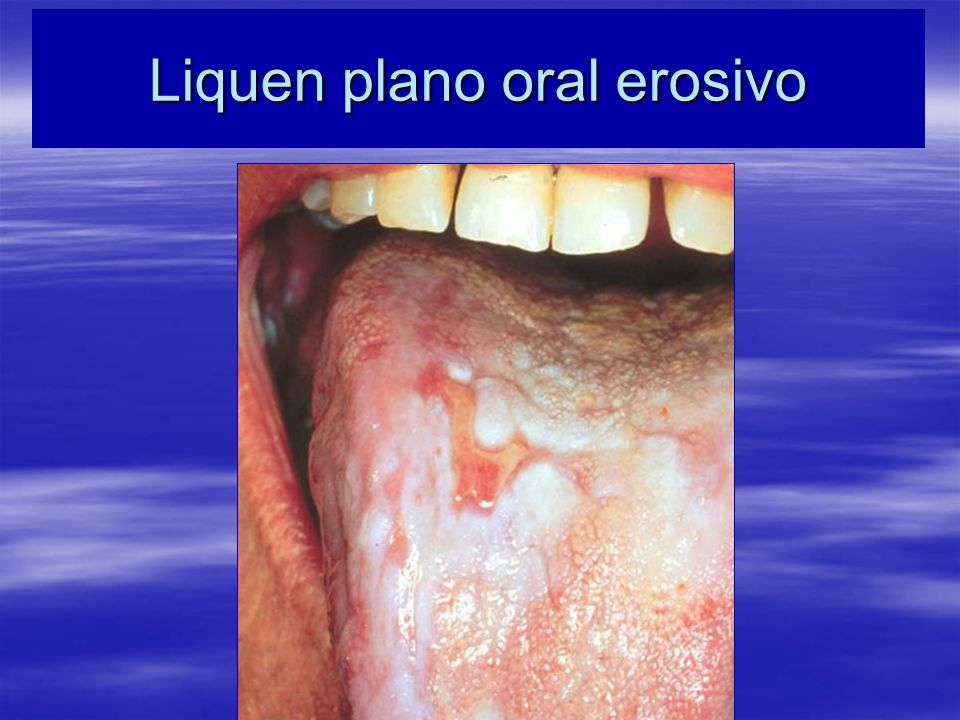 Liquen plano oral erosivo